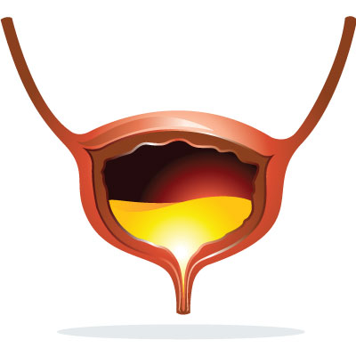 cystitis-urinary-tract-infection-uti