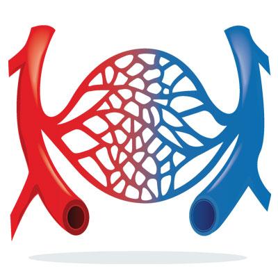 deep-venous-thrombosis-deep-vein-thrombosis-dvt