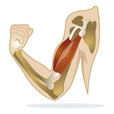 fibromyositis-fibromyalgia