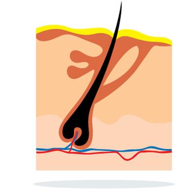 hematoma-contusion-ecchymosis-bruises