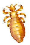 pediculosis-lice-louse