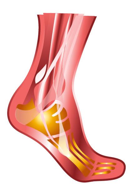 podagra-gout
